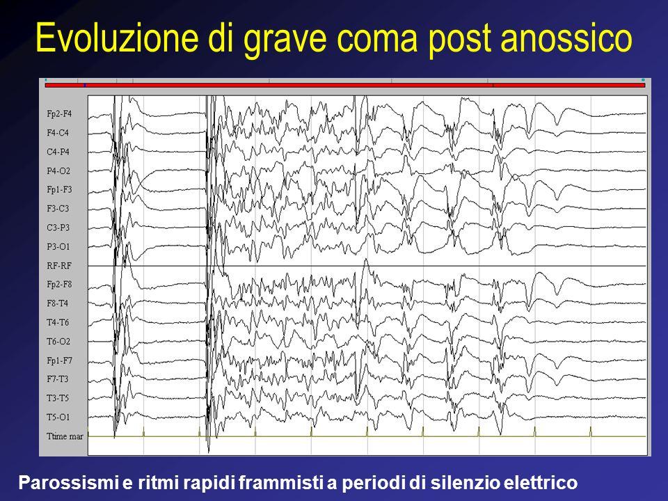 Evoluzione di grave coma post anossico Parossismi e ritmi rapidi frammisti a periodi di silenzio elettrico