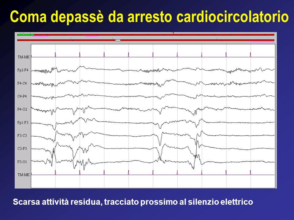 Coma depassè da arresto cardiocircolatorio Scarsa attività residua, tracciato prossimo al silenzio elettrico