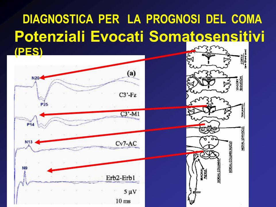 DIAGNOSTICA PER LA PROGNOSI DEL COMA I PES sono potenziali stimolo-correlati che esplorano la conduzione lungo le vie somatosensitive centrali (cordonali posteriori) secondo una localizzazione topografica precisa Le loro componenti sovramidollari sono pertanto un indice di funzionalità cerebrale Hanno il vantaggio di essere resistenti agli anestetici Le onde che si registrano sono semplici da interpretare e misurare