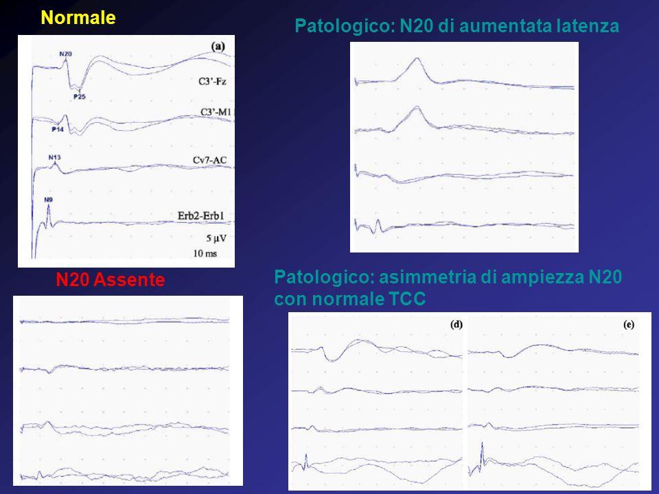 Normale Patologico: N20 di aumentata latenza Patologico: asimmetria di ampiezza N20 con normale TCC N20 Assente