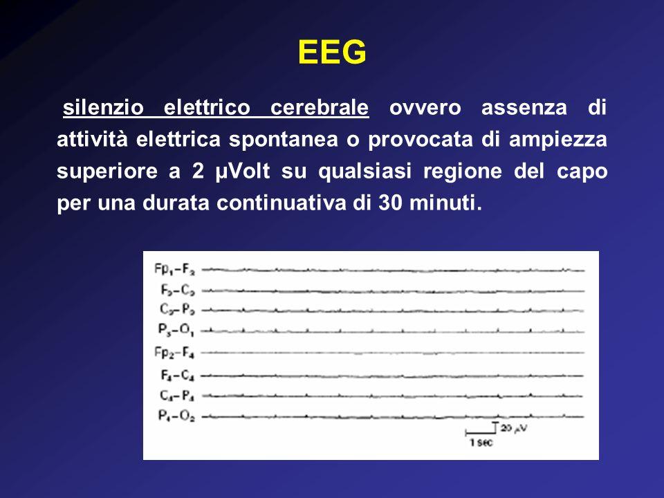 EEG silenzio elettrico cerebrale ovvero assenza di attività elettrica spontanea o provocata di ampiezza superiore a 2 μVolt su qualsiasi regione del capo per una durata continuativa di 30 minuti.