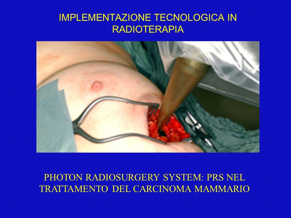 IMPLEMENTAZIONE TECNOLOGICA IN RADIOTERAPIA PHOTON RADIOSURGERY SYSTEM: PRS NEL TRATTAMENTO DEL CARCINOMA MAMMARIO