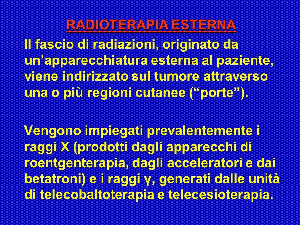 RADIOTERAPIA ESTERNA Il fascio di radiazioni, originato da unapparecchiatura esterna al paziente, viene indirizzato sul tumore attraverso una o più re