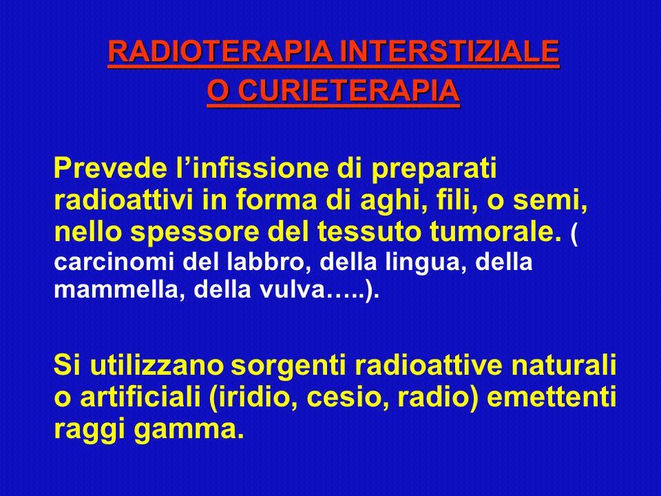 RADIOTERAPIA INTERSTIZIALE O CURIETERAPIA Prevede linfissione di preparati radioattivi in forma di aghi, fili, o semi, nello spessore del tessuto tumo