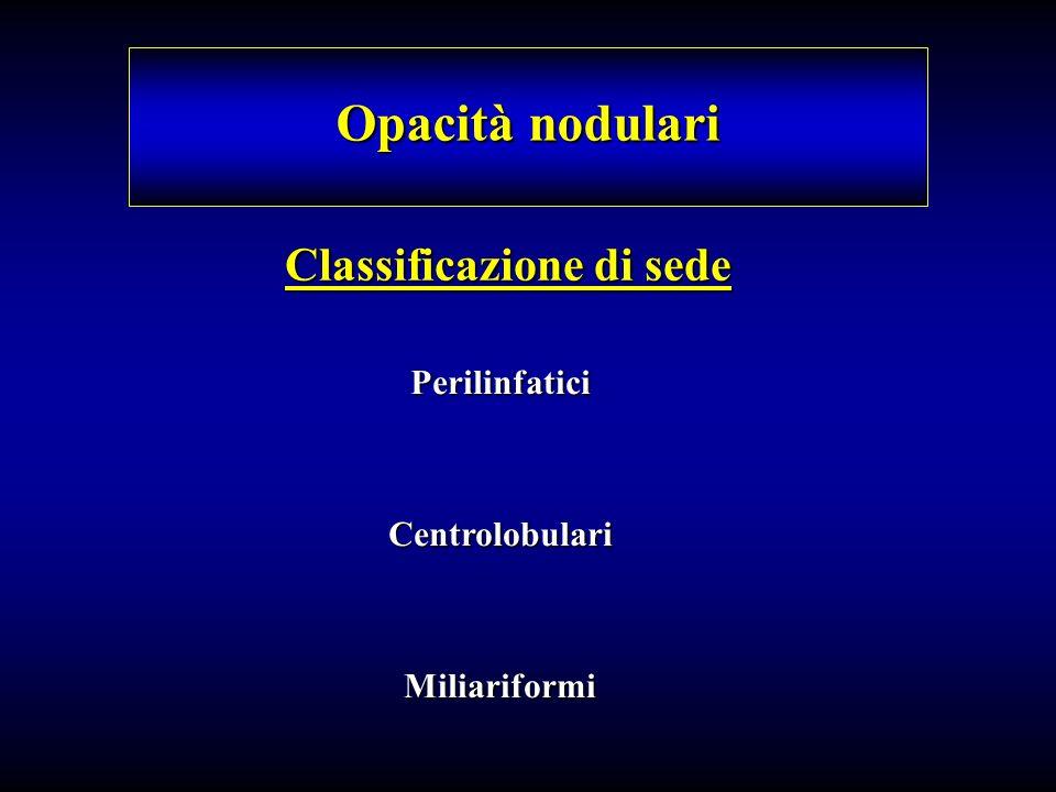Classificazione di sede Opacità nodulari PerilinfaticiCentrolobulariMiliariformi