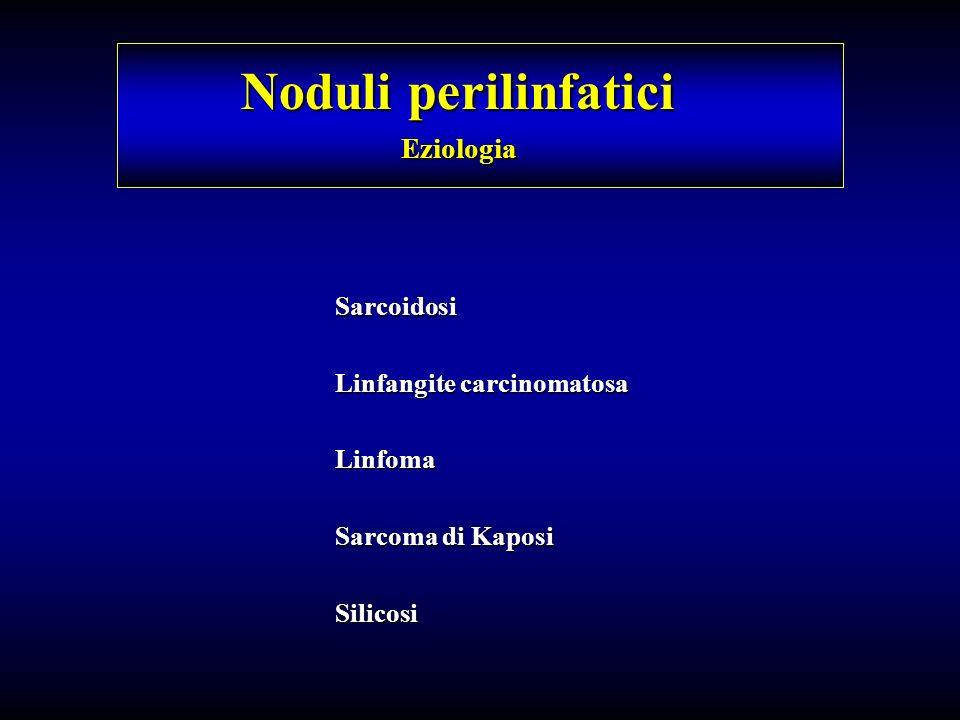 Noduli perilinfatici Eziologia Sarcoidosi Linfangite carcinomatosa Linfoma Sarcoma di Kaposi Silicosi