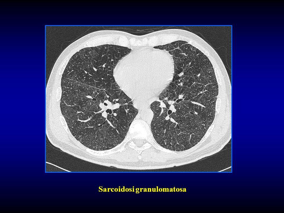 Sarcoidosi granulomatosa