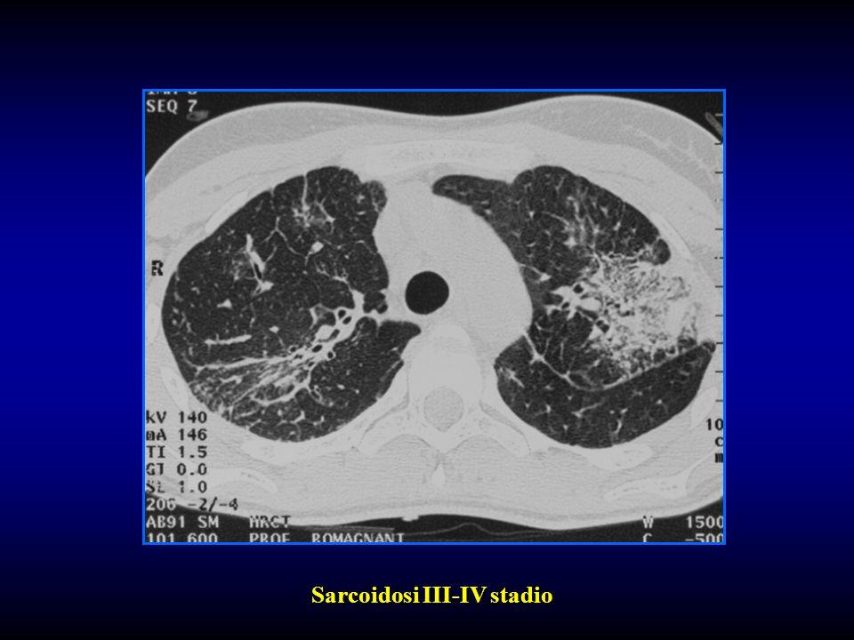 Sarcoidosi III-IV stadio