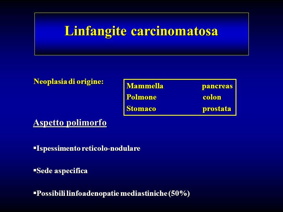 Linfangite carcinomatosa Neoplasia di origine: Mammella pancreas Polmone colon Stomaco prostata Aspetto polimorfo Ispessimento reticolo-nodulare Ispes