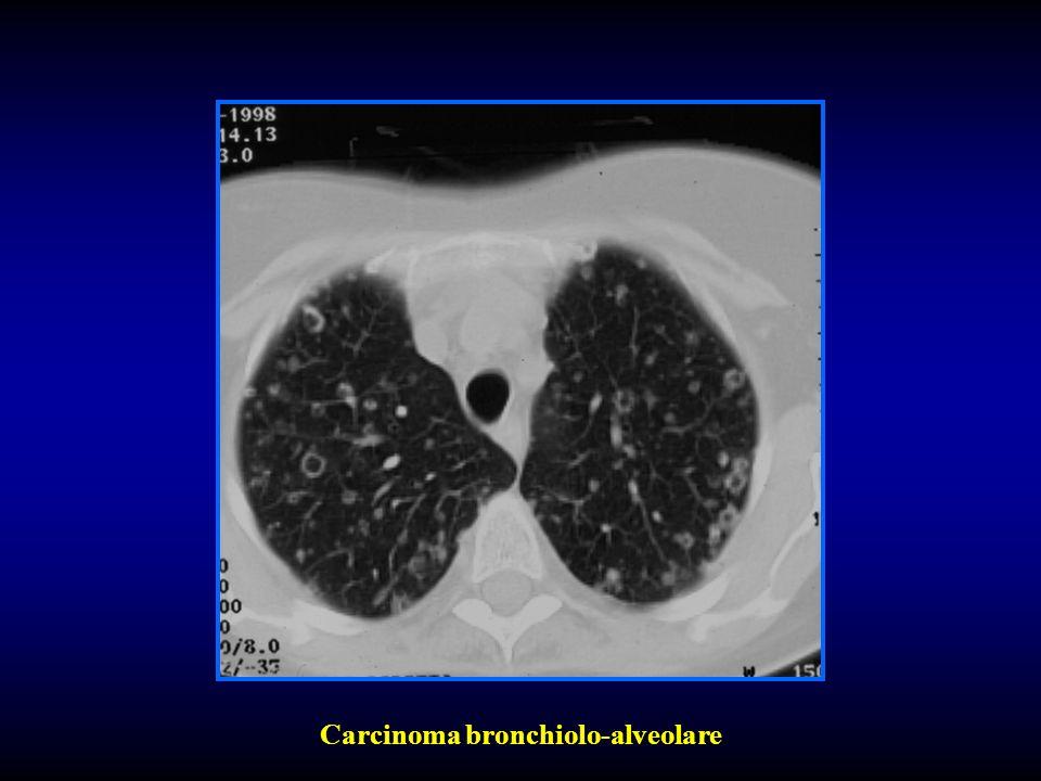 Carcinoma bronchiolo-alveolare
