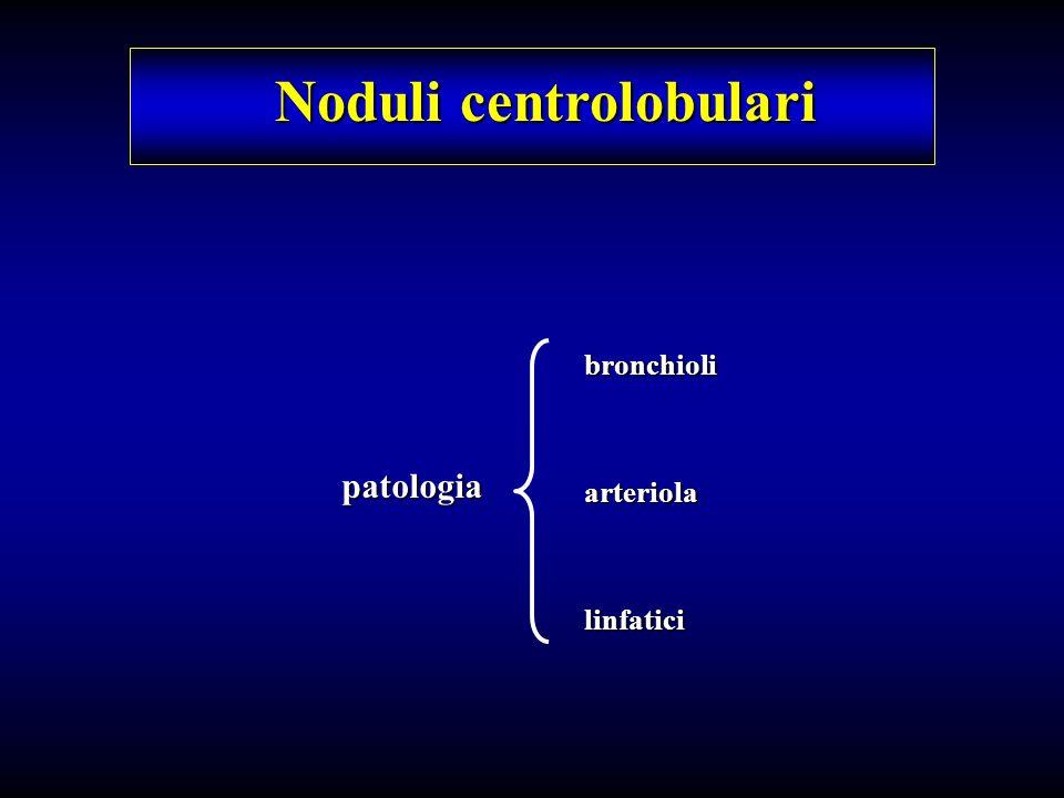 Noduli centrolobulari patologia bronchioliarteriolalinfatici