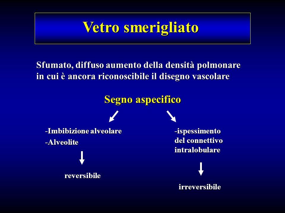 Vetro smerigliato Sfumato, diffuso aumento della densità polmonare in cui è ancora riconoscibile il disegno vascolare Segno aspecifico -Imbibizione al