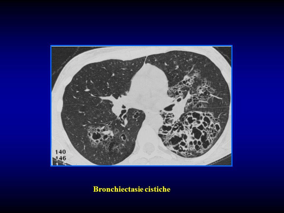 Bronchiectasie cistiche