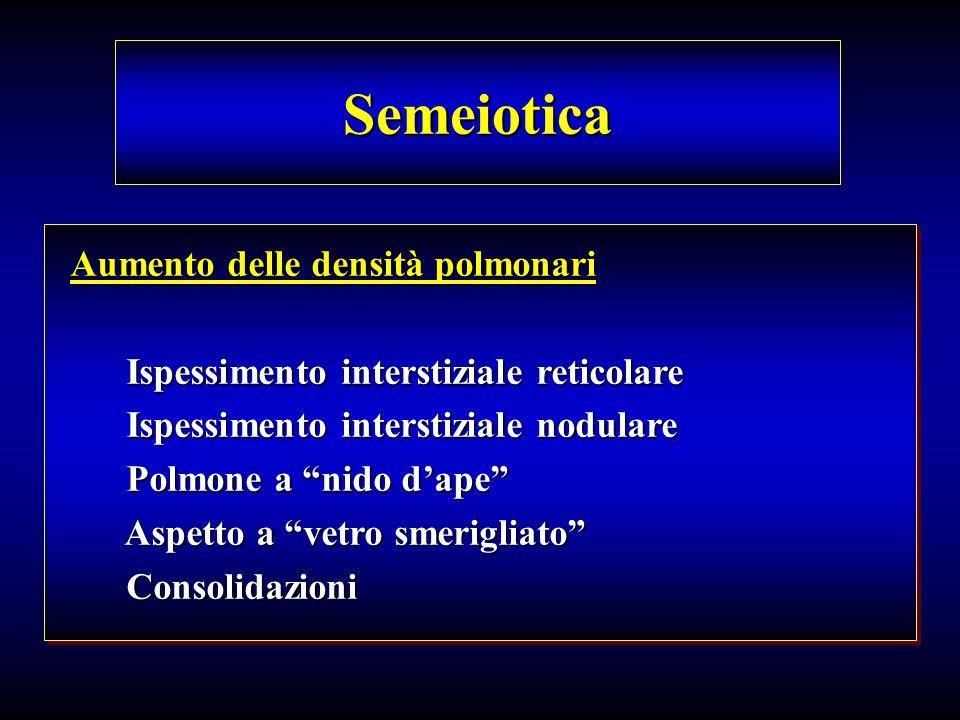 Semeiotica Aumento delle densità polmonari Ispessimento interstiziale reticolare Ispessimento interstiziale reticolare Ispessimento interstiziale nodu