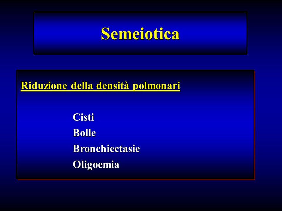 Semeiotica Riduzione della densità polmonari Cisti Cisti Bolle Bolle Bronchiectasie Bronchiectasie Oligoemia Oligoemia