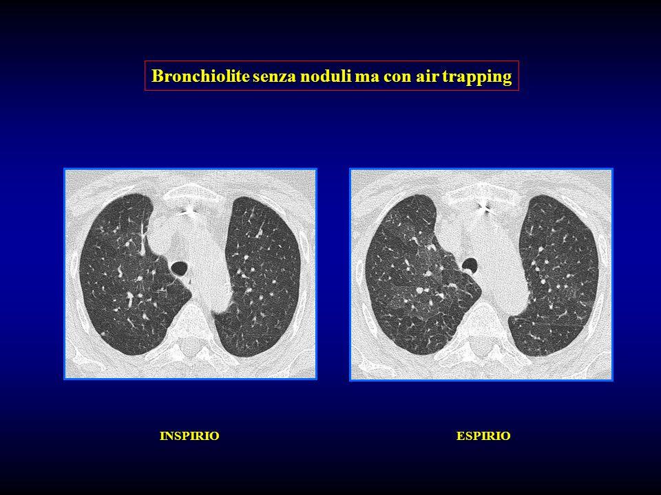 Bronchiolite senza noduli ma con air trapping INSPIRIO ESPIRIO