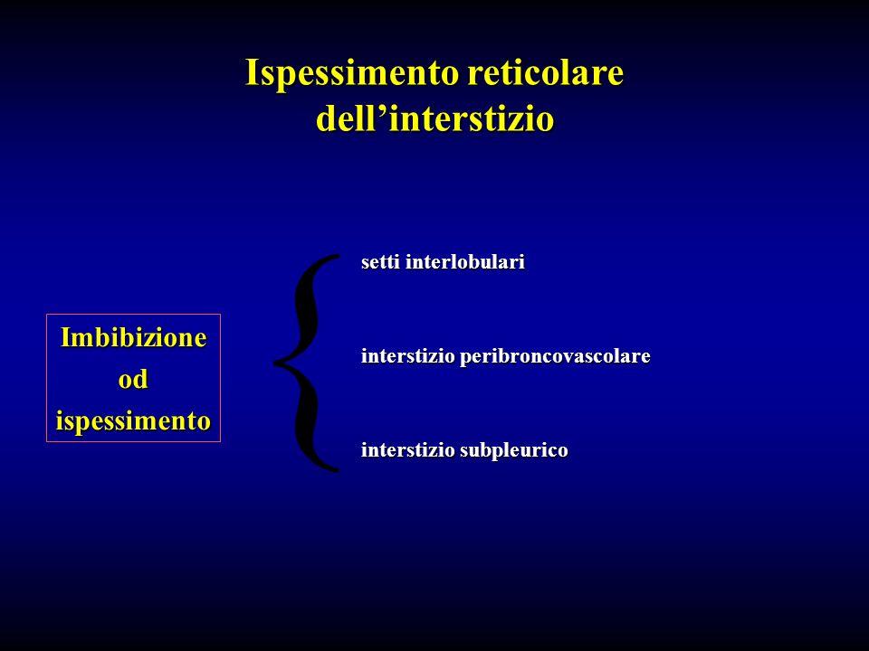 Ispessimento reticolare dellinterstizio Imbibizioneodispessimento { setti interlobulari interstizio peribroncovascolare interstizio subpleurico