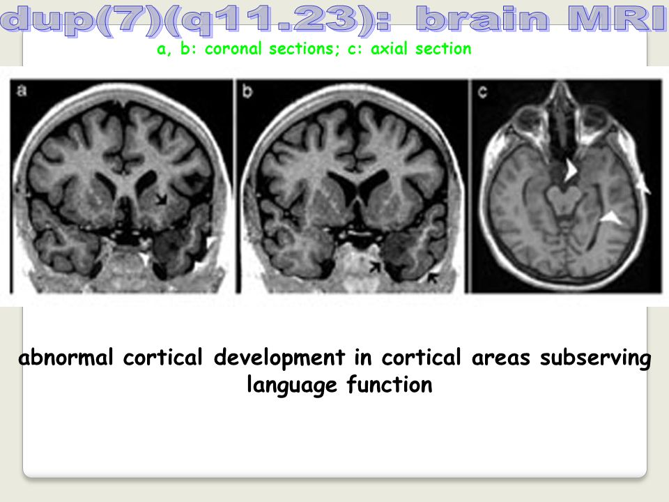 a, b: coronal sections; c: axial section abnormal cortical development in cortical areas subserving language function