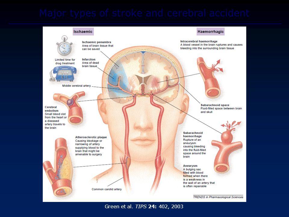 Major types of stroke and cerebral accident Green et al. TIPS 24: 402, 2003