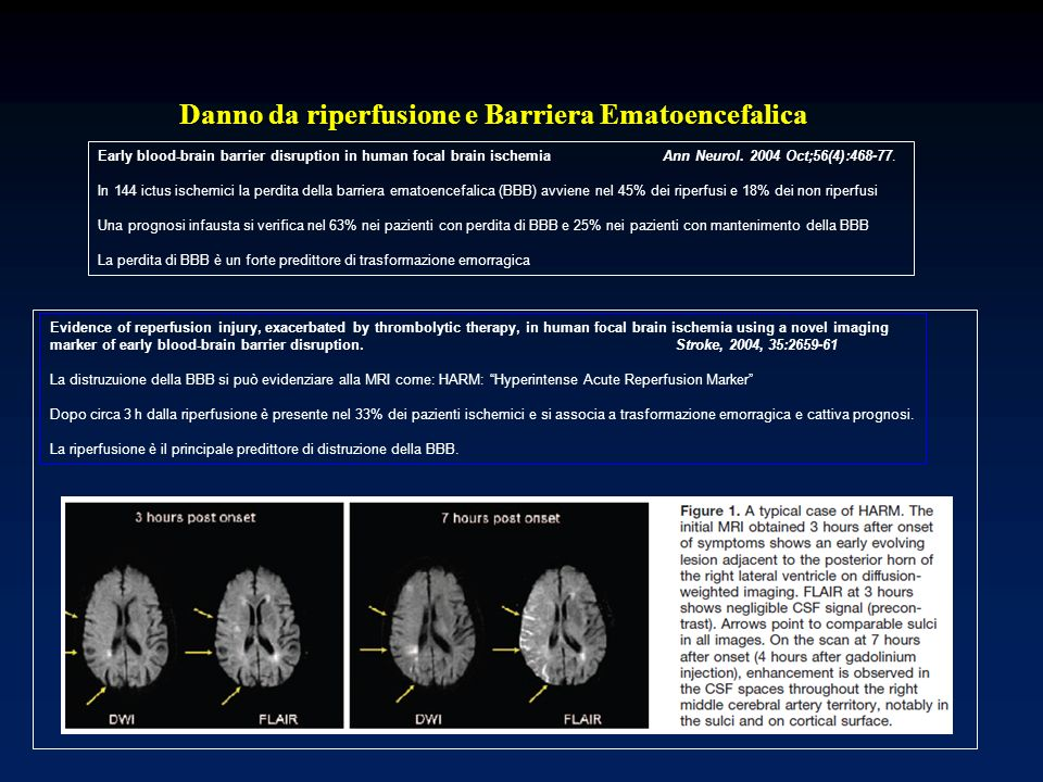 Early blood-brain barrier disruption in human focal brain ischemia Ann Neurol. 2004 Oct;56(4):468-77. In 144 ictus ischemici la perdita della barriera