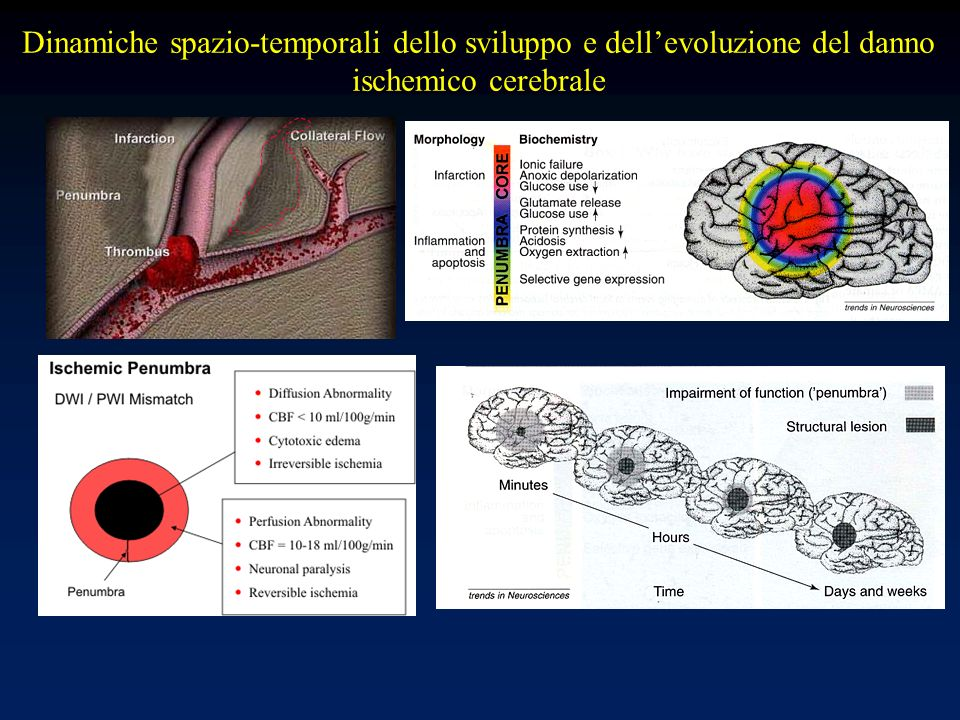 Dinamiche spazio-temporali dello sviluppo e dellevoluzione del danno ischemico cerebrale