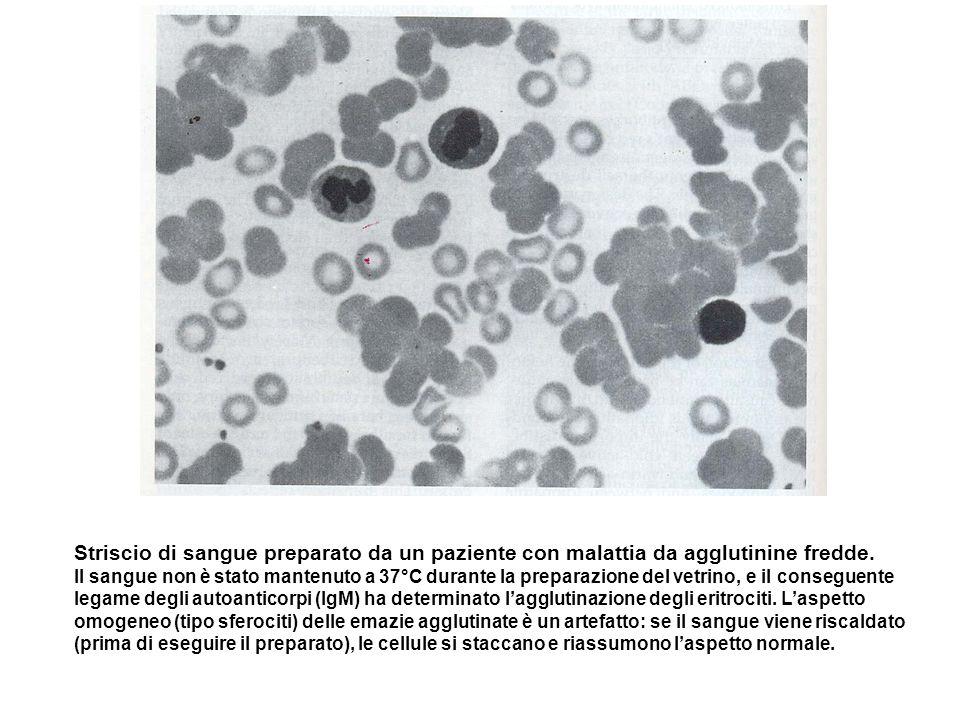 Striscio di sangue preparato da un paziente con malattia da agglutinine fredde. Il sangue non è stato mantenuto a 37°C durante la preparazione del vet