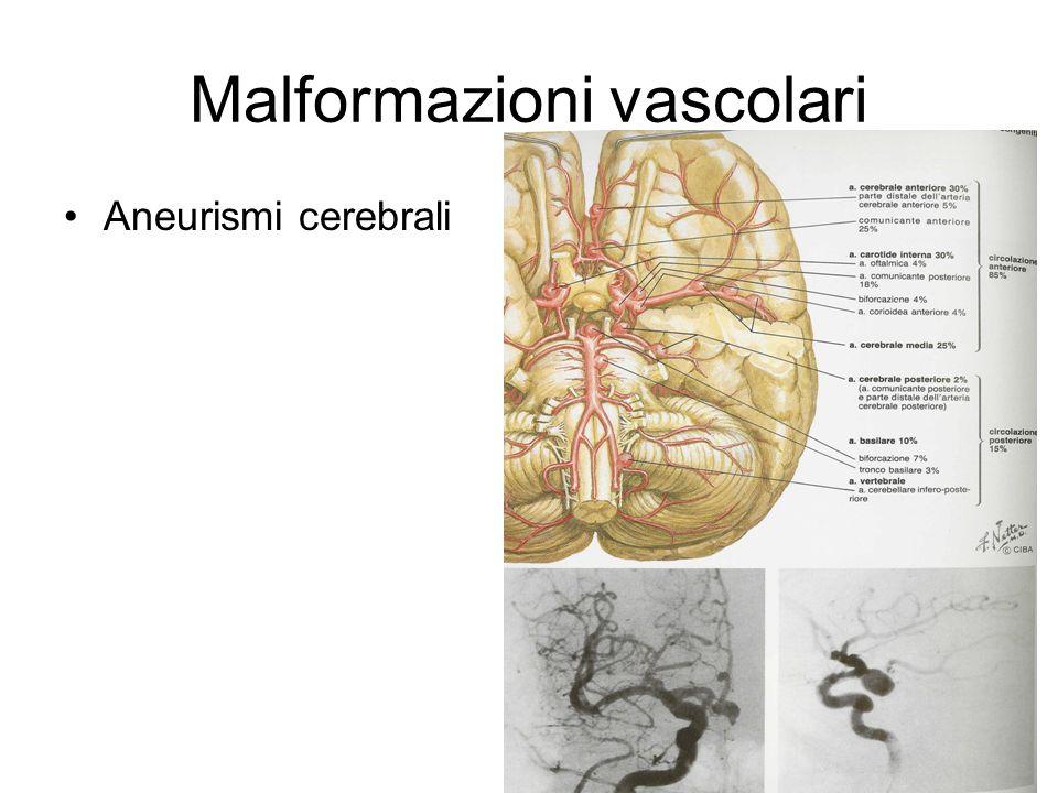 Malformazioni vascolari Aneurismi cerebrali
