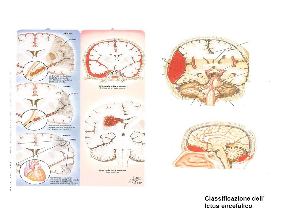 Classificazione dell Ictus encefalico
