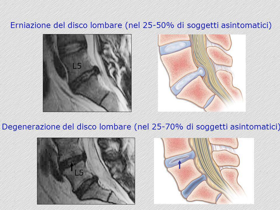 Erniazione del disco lombare (nel 25-50% di soggetti asintomatici) Degenerazione del disco lombare (nel 25-70% di soggetti asintomatici) L5