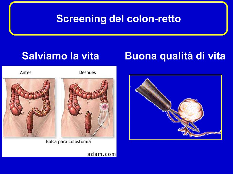 Screening del colon-retto Salviamo la vitaBuona qualità di vita