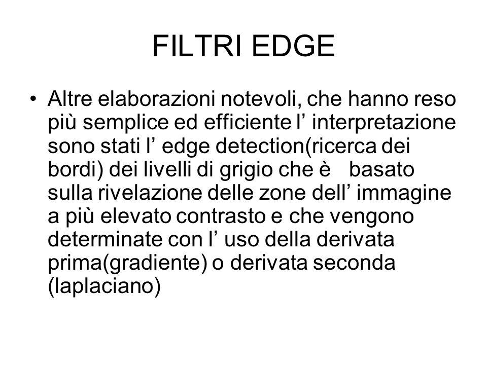 FILTRI EDGE Altre elaborazioni notevoli, che hanno reso più semplice ed efficiente l interpretazione sono stati l edge detection(ricerca dei bordi) de