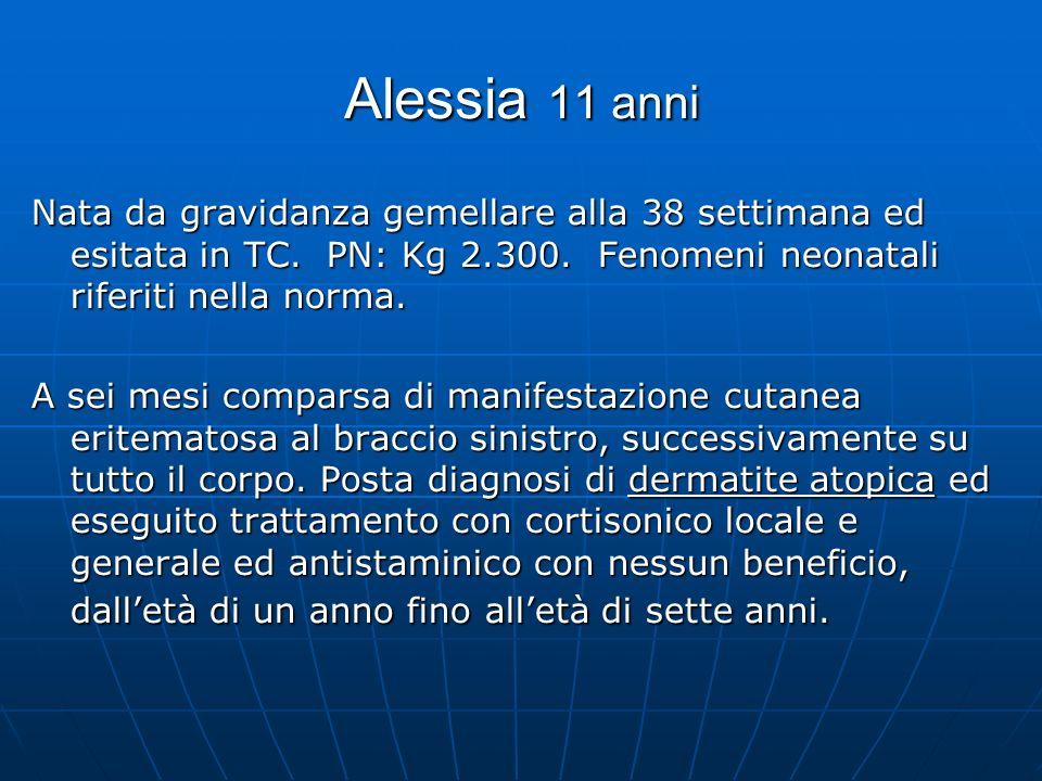 Alessia 11 anni Nata da gravidanza gemellare alla 38 settimana ed esitata in TC. PN: Kg 2.300. Fenomeni neonatali riferiti nella norma. A sei mesi com