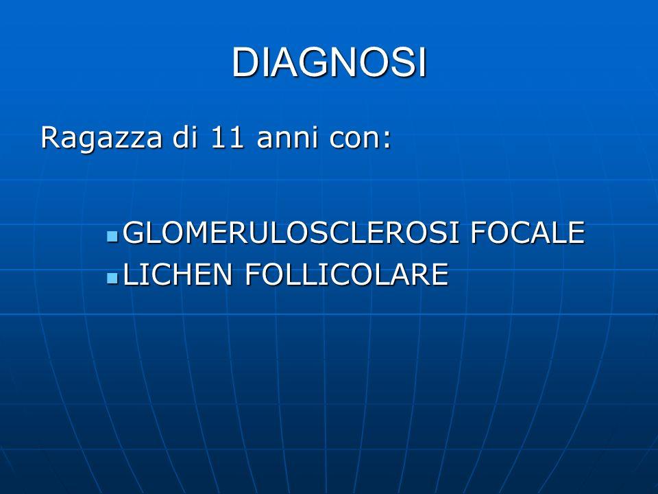 DIAGNOSI Ragazza di 11 anni con: GLOMERULOSCLEROSI FOCALE GLOMERULOSCLEROSI FOCALE LICHEN FOLLICOLARE LICHEN FOLLICOLARE