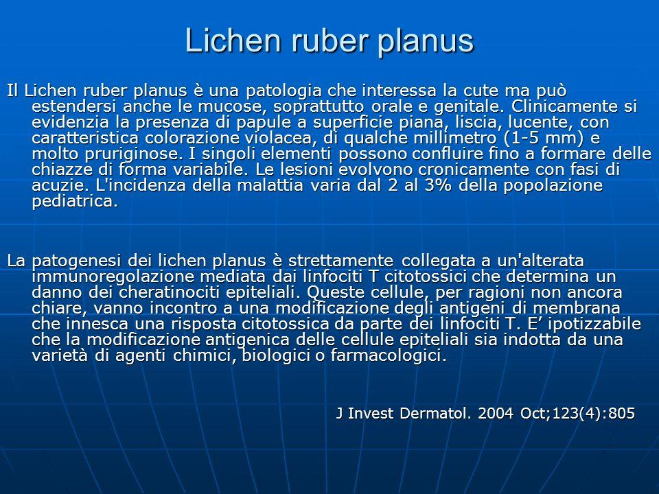 Lichen ruber planus Il Lichen ruber planus è una patologia che interessa la cute ma può estendersi anche le mucose, soprattutto orale e genitale. Clin