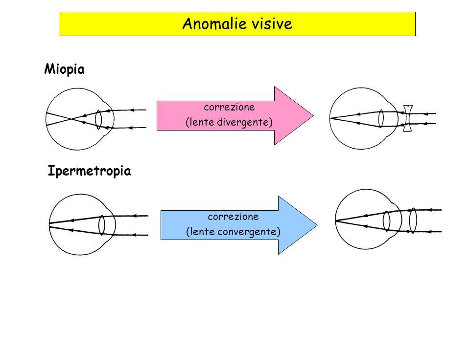 Anomalie visive Miopia Ipermetropia correzione (lente divergente) correzione (lente convergente)