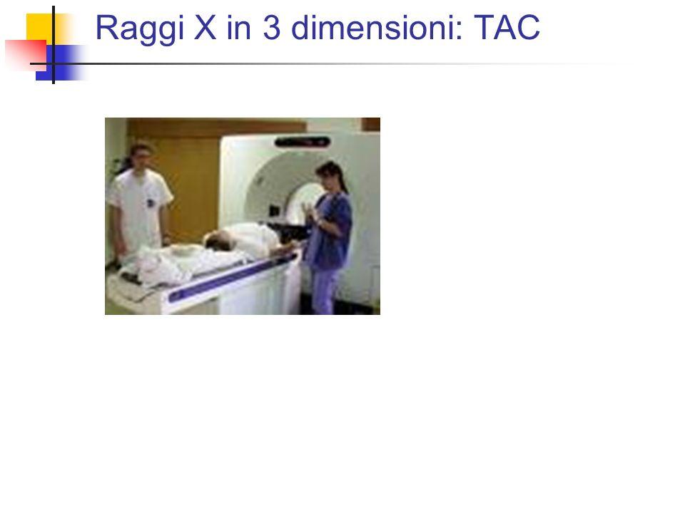 Raggi X in 3 dimensioni: TAC
