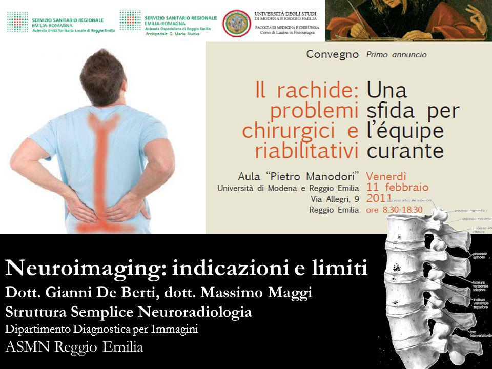 Lombalgia ed Imaging: RX Non raccomandata come esame di routine nel primo mese di sintomatologia, in assenza di segni o sintomi di grave patologia spinale.