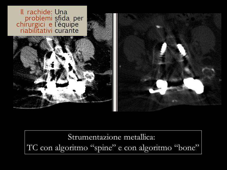 Strumentazione metallica: TC con algoritmo spine e con algoritmo bone