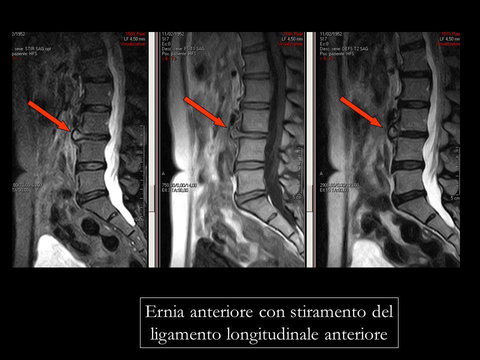 Ernia anteriore con stiramento del ligamento longitudinale anteriore