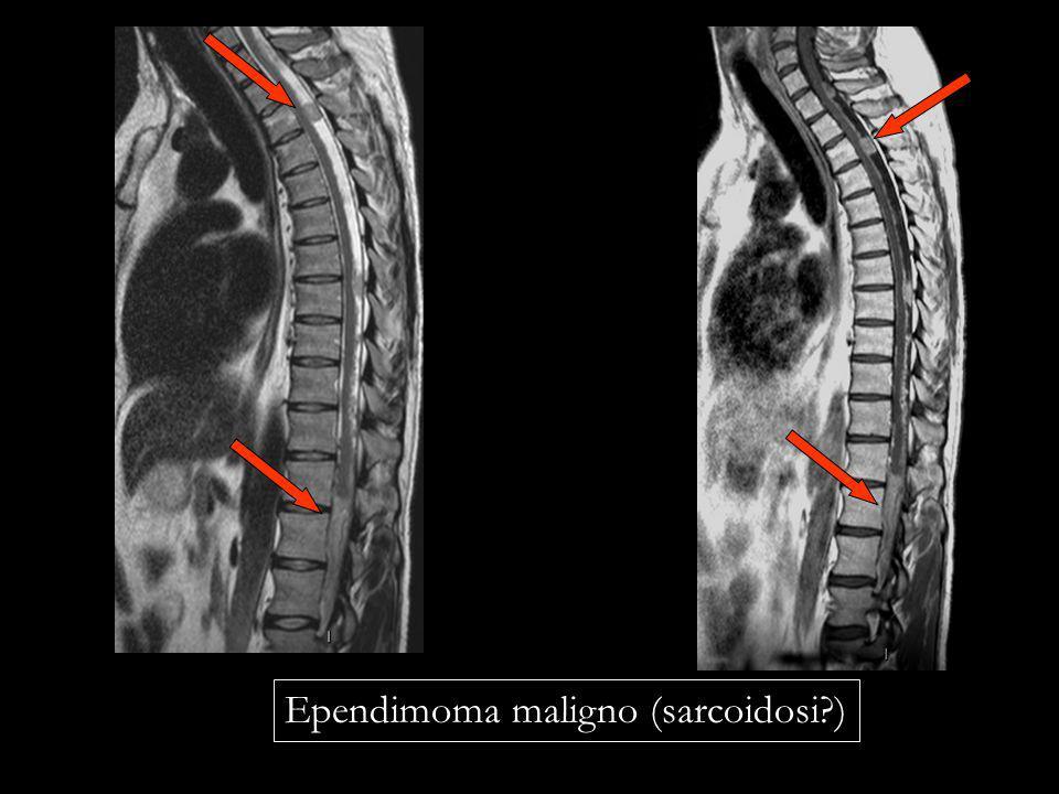 Ependimoma maligno (sarcoidosi?)