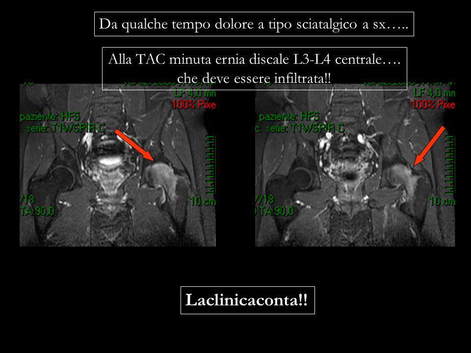 Da qualche tempo dolore a tipo sciatalgico a sx….. Alla TAC minuta ernia discale L3-L4 centrale…. che deve essere infiltrata!! Laclinicaconta!!