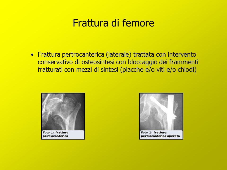 Frattura di femore Frattura pertrocanterica (laterale) trattata con intervento conservativo di osteosintesi con bloccaggio dei frammenti fratturati co