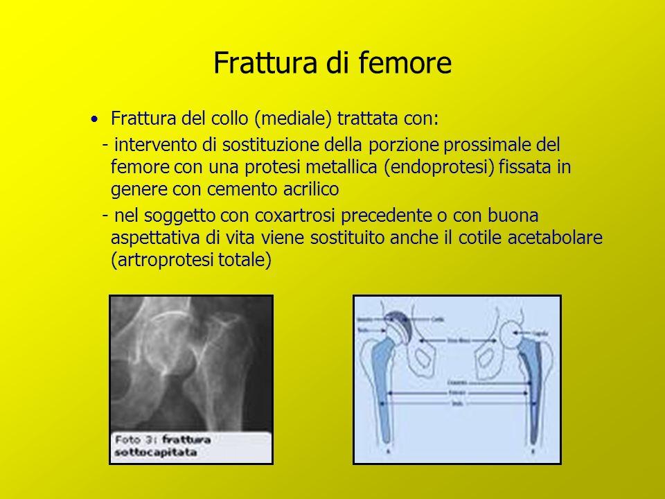 Frattura di femore Frattura del collo (mediale) trattata con: - intervento di sostituzione della porzione prossimale del femore con una protesi metall