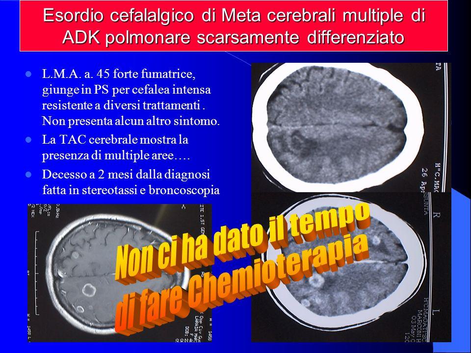 L.M.A.a. 45 forte fumatrice, giunge in PS per cefalea intensa resistente a diversi trattamenti.