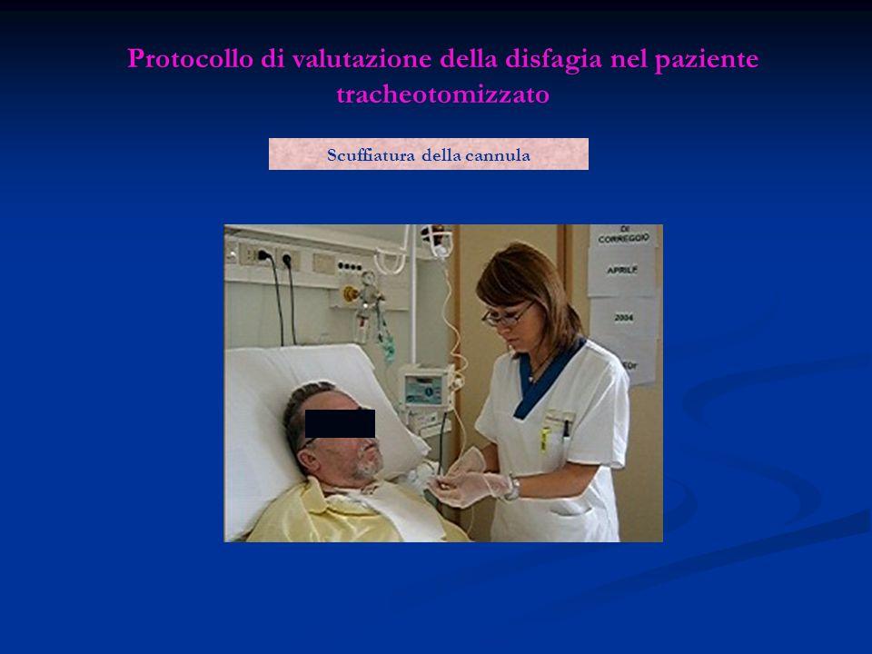 Protocollo di valutazione della disfagia nel paziente tracheotomizzato Scuffiatura della cannula