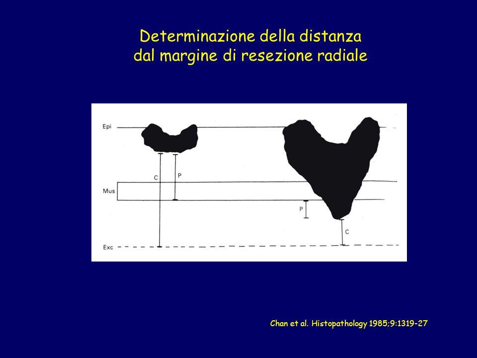 Determinazione della distanza dal margine di resezione radiale Chan et al. Histopathology 1985;9:1319-27