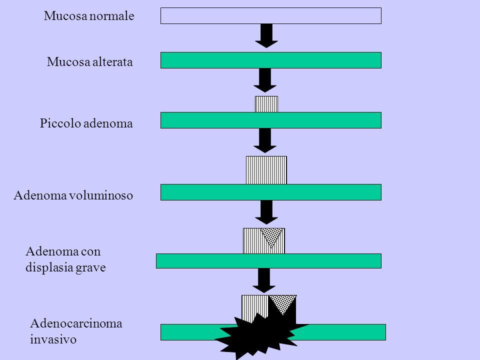Mucosa normale Mucosa alterata Piccolo adenoma Adenoma voluminoso Adenoma con displasia grave Adenocarcinoma invasivo
