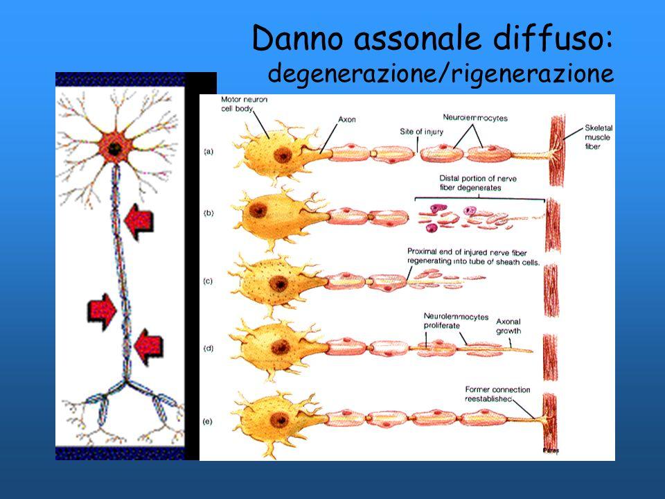 Danno assonale diffuso: degenerazione/rigenerazione
