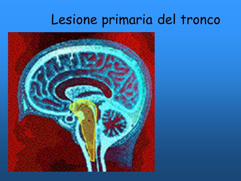 Grave lesione ipossica diffusa