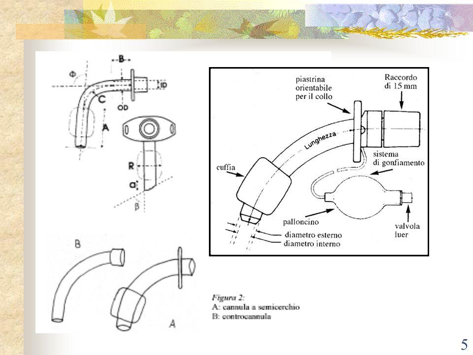 4 Stoma Confezionamento tracheo Percutanea – metodo meno invasivo Chirurgica – punti di sutura, di ancoraggio Medicazione – monitoraggio stoma, set di